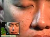Removing worms from a face